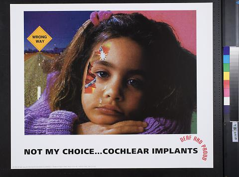 Not my choice..Cochlear Implants